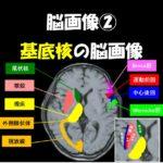 2019.8.24(土)基底核障害の脳画像と治療のための機能解剖@広島