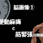 2019.5.12(日)運動⿇痺と筋緊張(痙性)の評価と治療の考え⽅と予後予測@沖縄