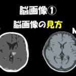 2019.4.20(土)MRI・CTの基本的な見方と運動麻痺の予後@東京