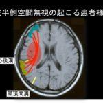 2020.5.30(土)高次脳障害の脳画像と治療のための機能解剖 〜注意障害・半側空間無視を中心にした高次脳の評価と治療展開〜 IN 沖縄