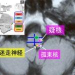 1.11(土)嚥下・食事に対する脳画像と治療のための機能解剖~画像から考える仮性球麻痺と球麻痺、ワレンベルグの治療のための機能解剖~@大阪